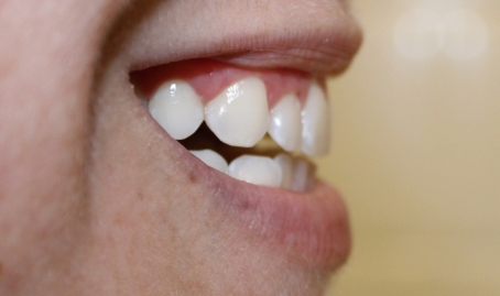 After Whitening - Amy Lee Creel